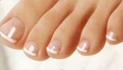 Fußnägel weiße Verfärbter Fußnagel